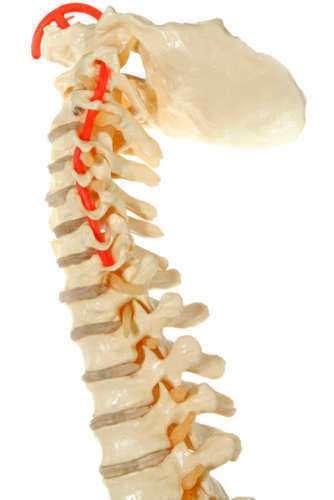 Lesion de la Medula Espinal